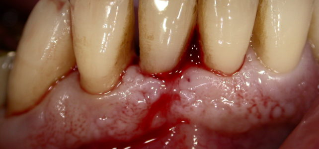 Carie radicolare, recupero di un dente da avulsione.