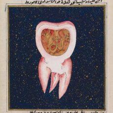 Il verme della carie