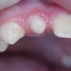 Dens in Dente o meglio invaginazione dentale