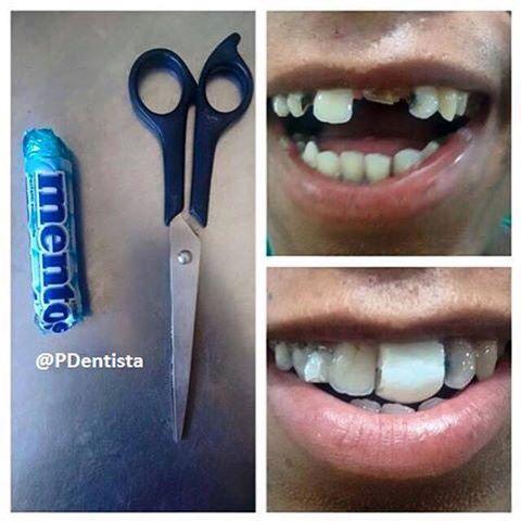Dentisti fai da te 2.0, tutto è possibile…
